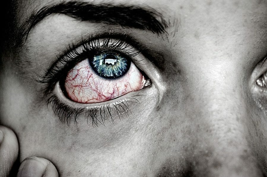 Eye in pain